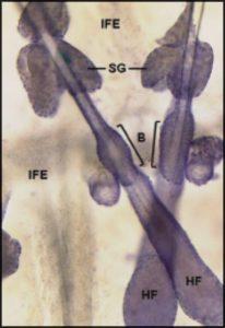 Sebum and sebaceous gland anatomy: SG: sebaceous gland, B: bulge region containing stem cells, HF: hair follicle, IFE: interfollicular epidermis