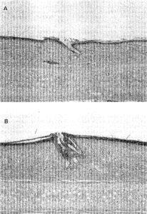Squalene peroxide comedogenesis